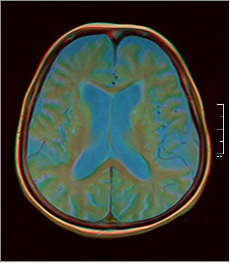 Brain MRI 0198 08.jpg