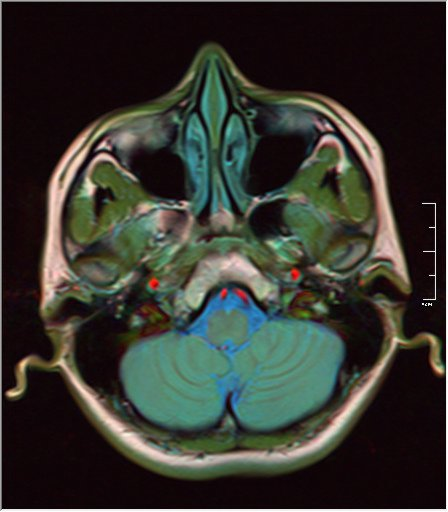 Color Brain MRI 0292 18.jpg