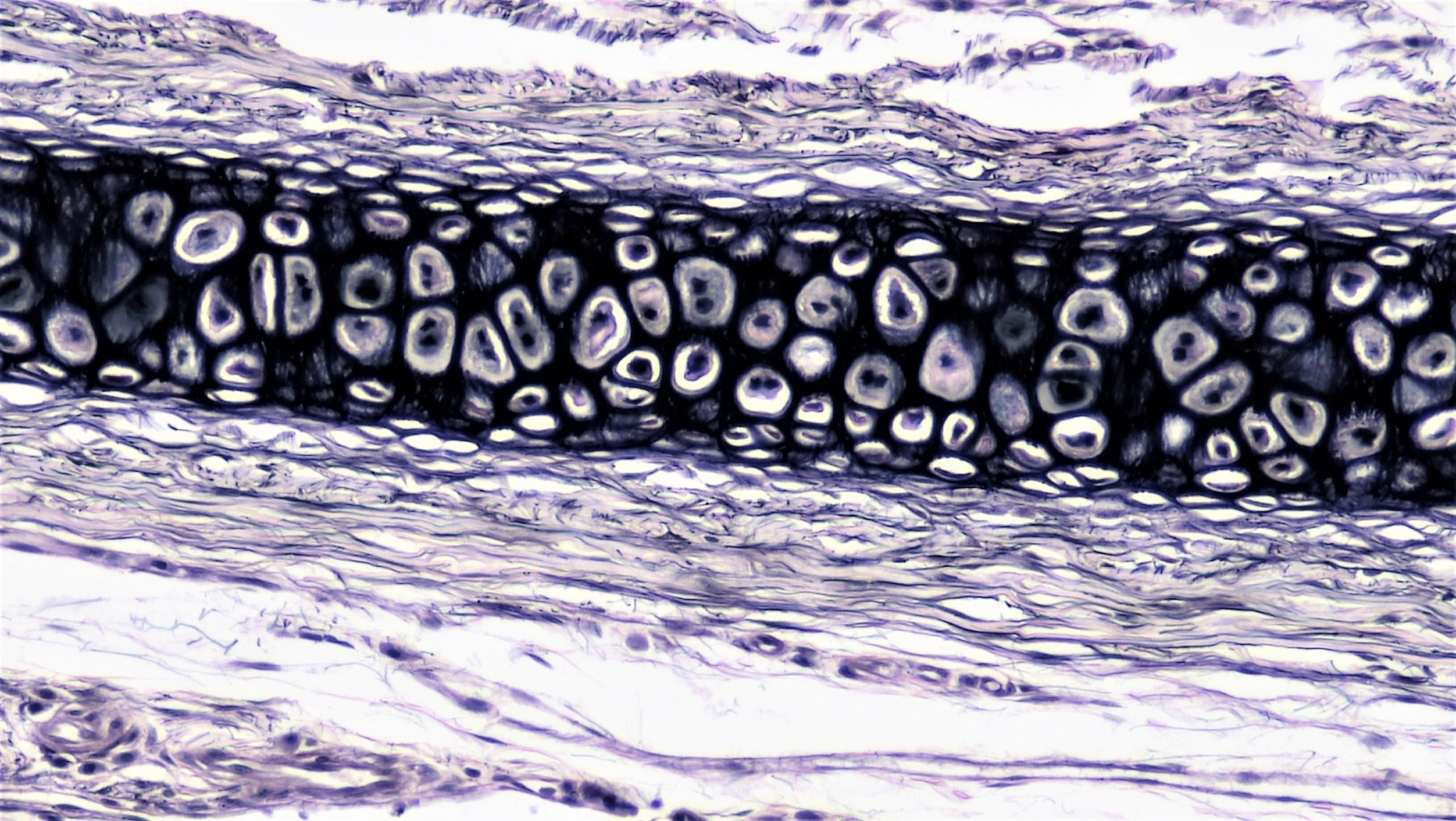 File Connective Tissue Elastic Cartilage 41812804042 Jpg