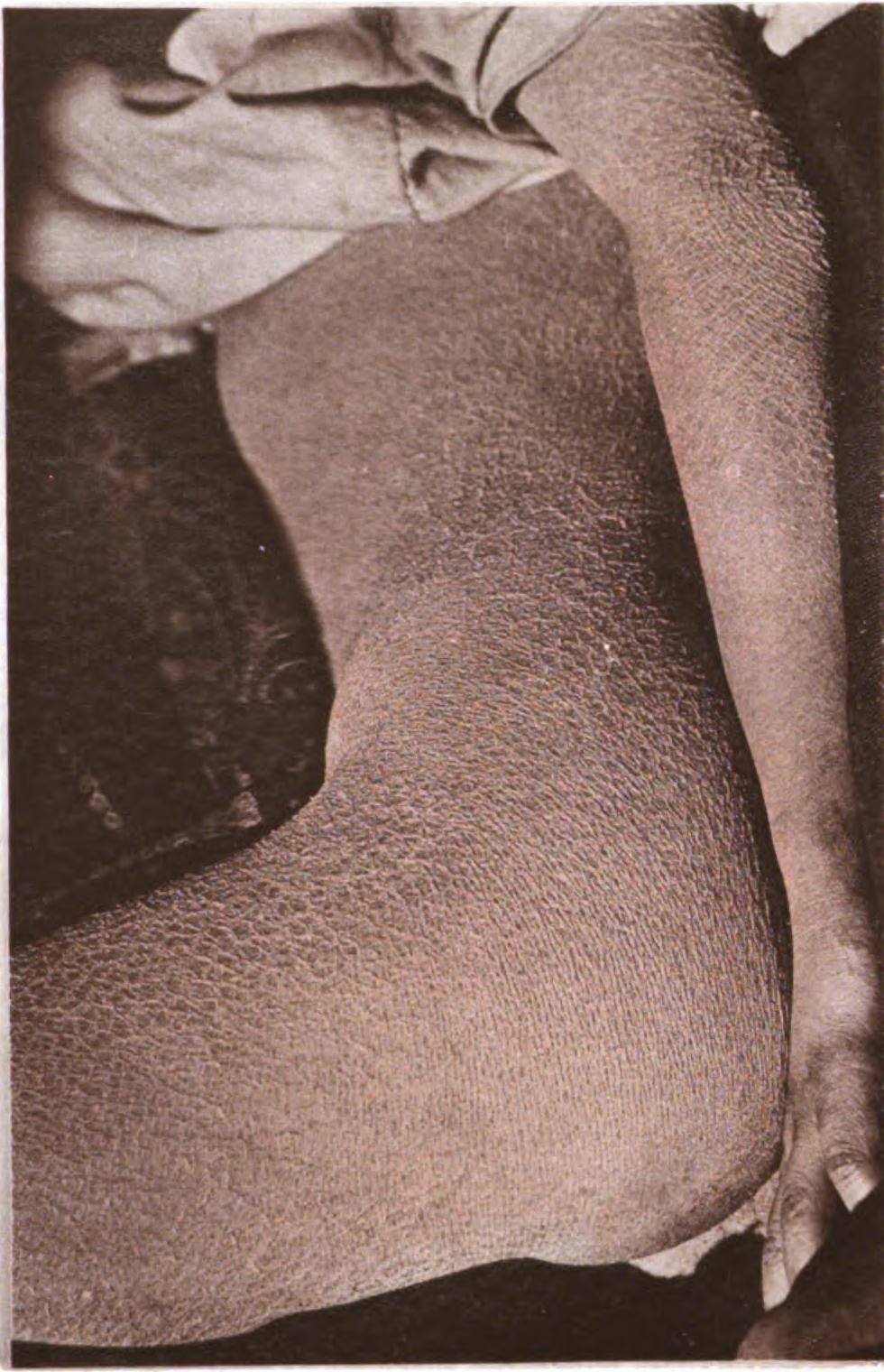 enfermedad de piel de cocodrilo