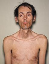 Myotonic dystrophy patient.JPG