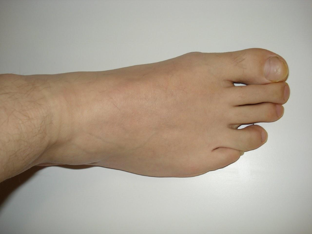 File:Right foot.jpg  Wikipedia, the free encyclopedia