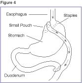 Roux-en-Y gastric bypass.