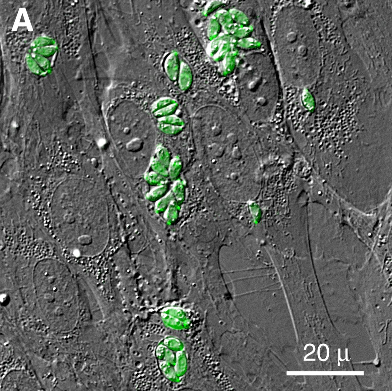 a toxoplazma parazita