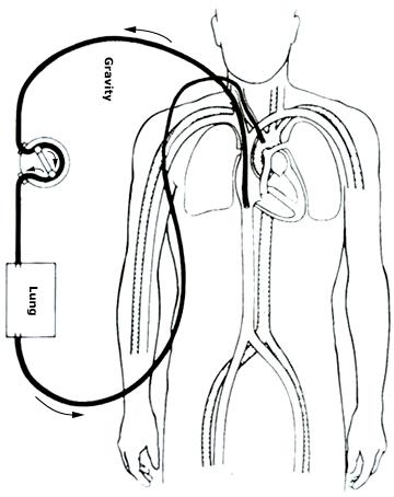 External Nasal Dilator
