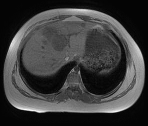 Cholangiocarcinoma, intrahepatic, large duct type.