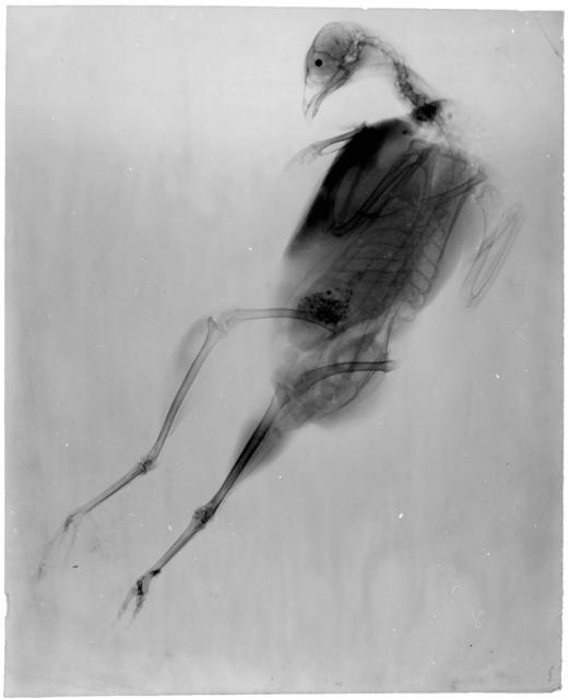 Albert Londe
