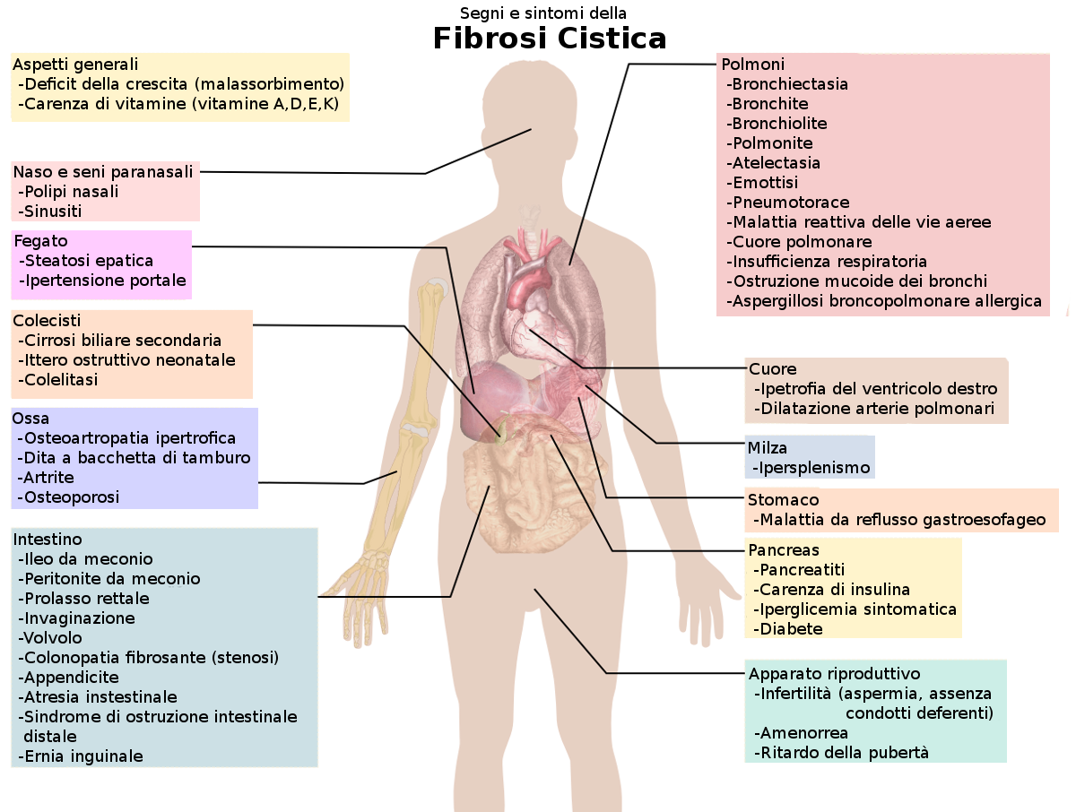 the clinical history and description of the cystic fibrosis cf disease Although the entire clinical spectrum of cf was not recognized until the   between celiac disease, cystic fibrosis of the pancreas, and bronchiectasis   she was the first to describe the characteristic cystic fibrosis of the.