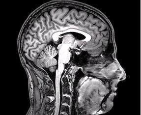 File:FMRI Brain Scan.jpg