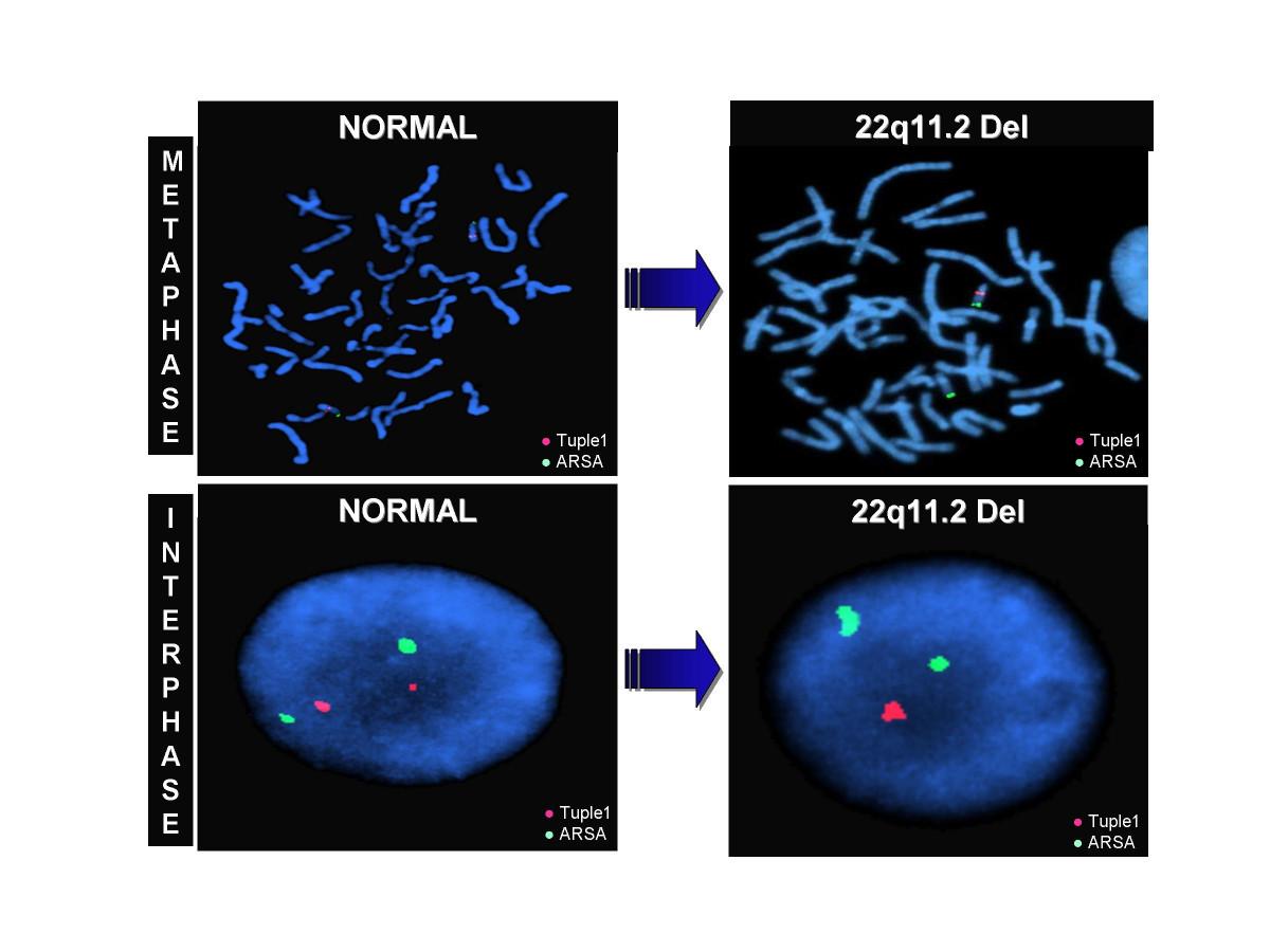 Topic analises cromossomas geneticos something is