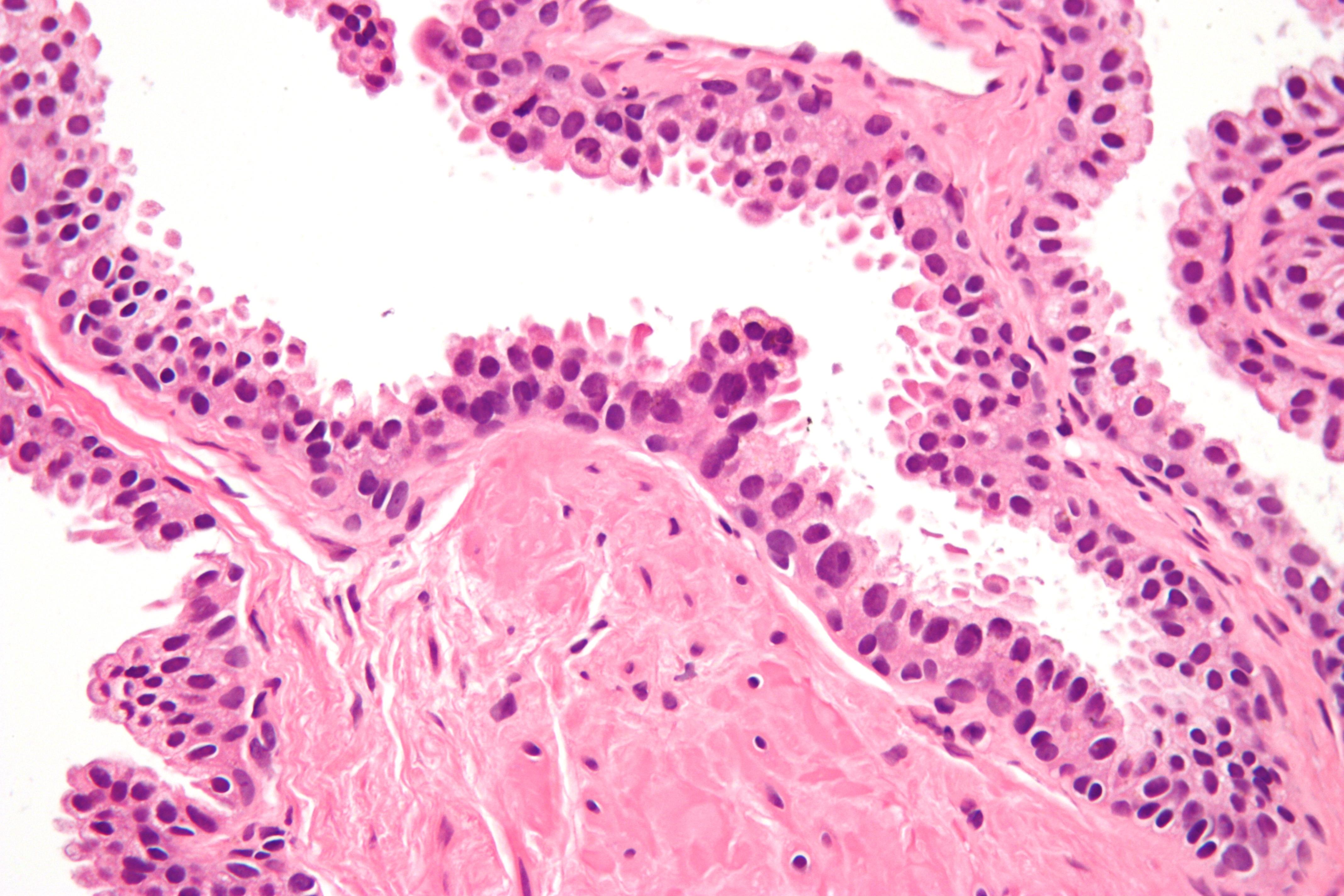 adenocarcinoma prostatico 3 3 5