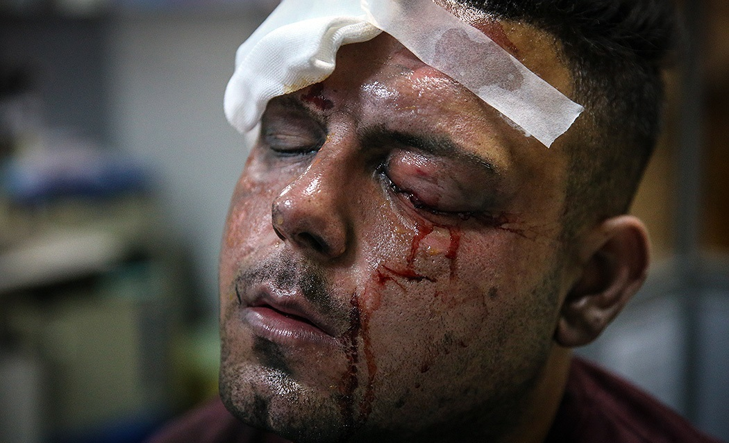 File:Injured caused by 2018 Chaharshanbe Suri, Farabi Hospital