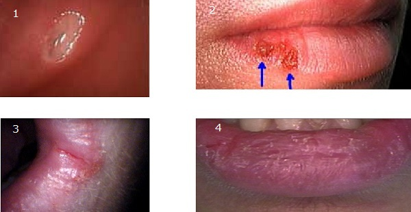 Oral Herpes: Symptoms such as blisters and open sores can occur on the lips, cheeks, and/or tongue 2