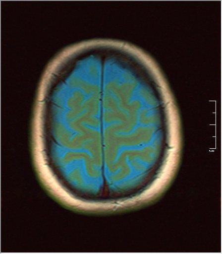 Brain MRI 0129 02.jpg
