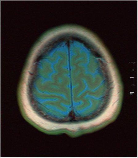 Brain MRI 0230 02.jpg
