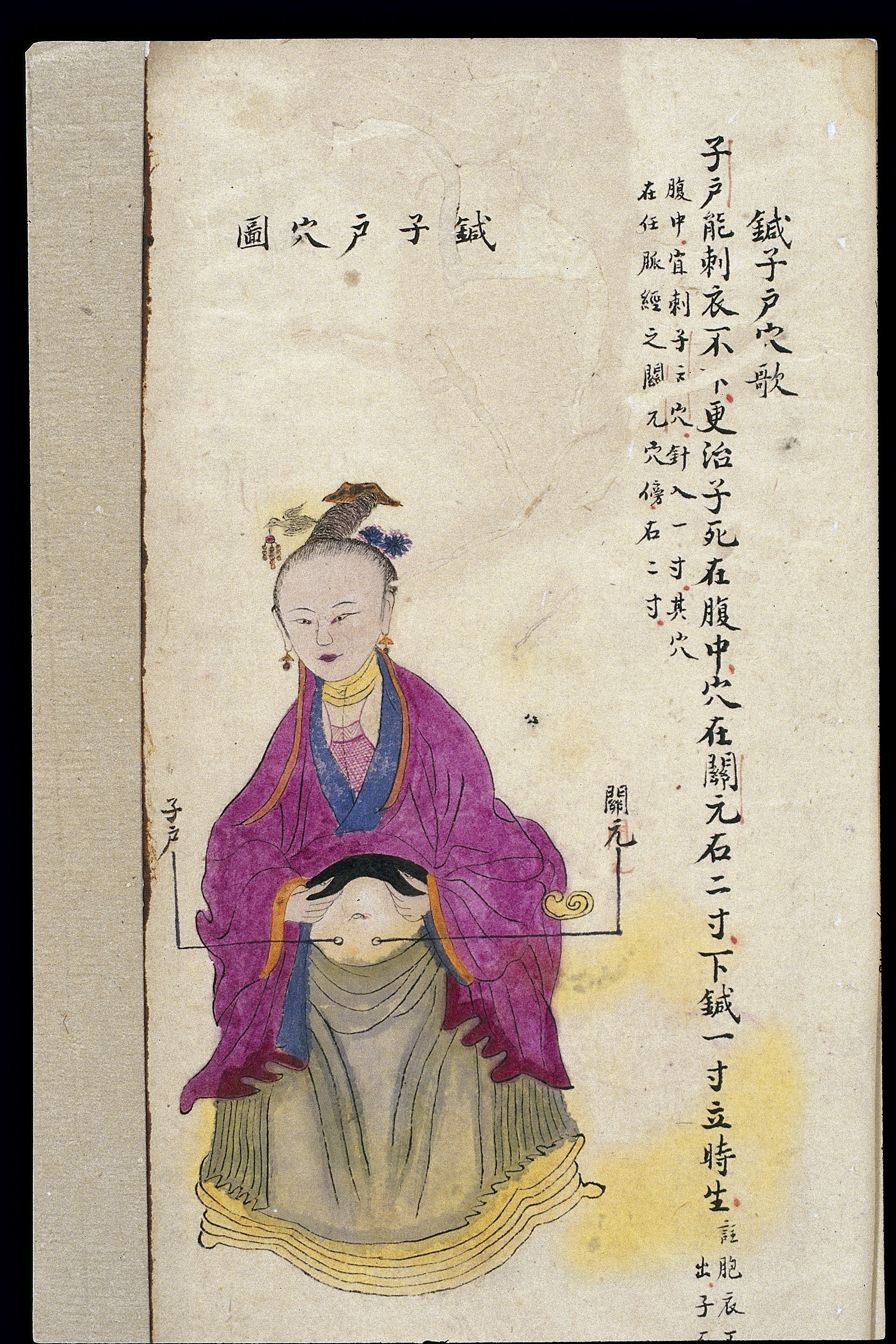 Trigger Point Charts: C19 Chinese MS moxibustion point chart; Cervix point Wellcome ,Chart