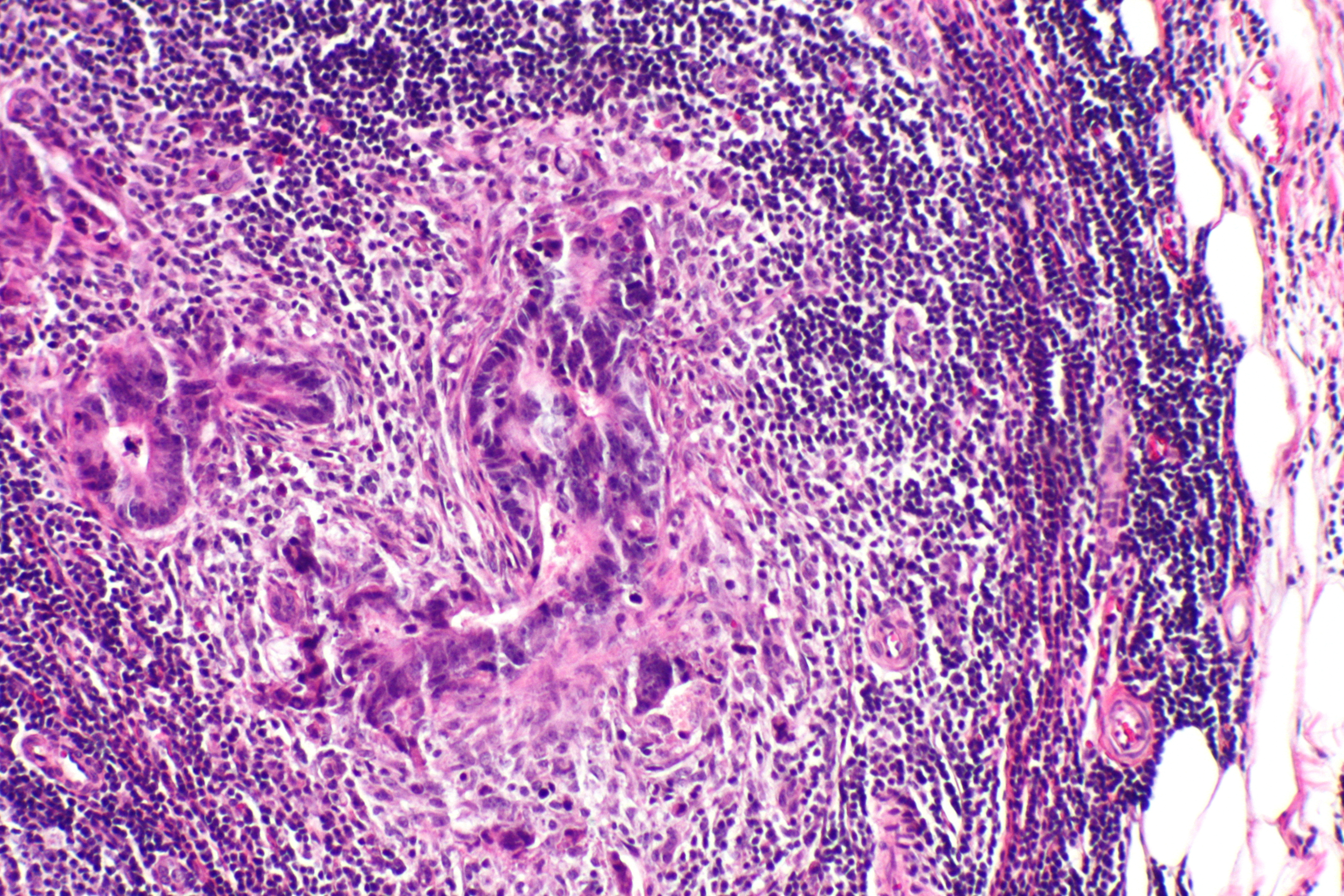 Lymph Node Cancer In Dogs Uk
