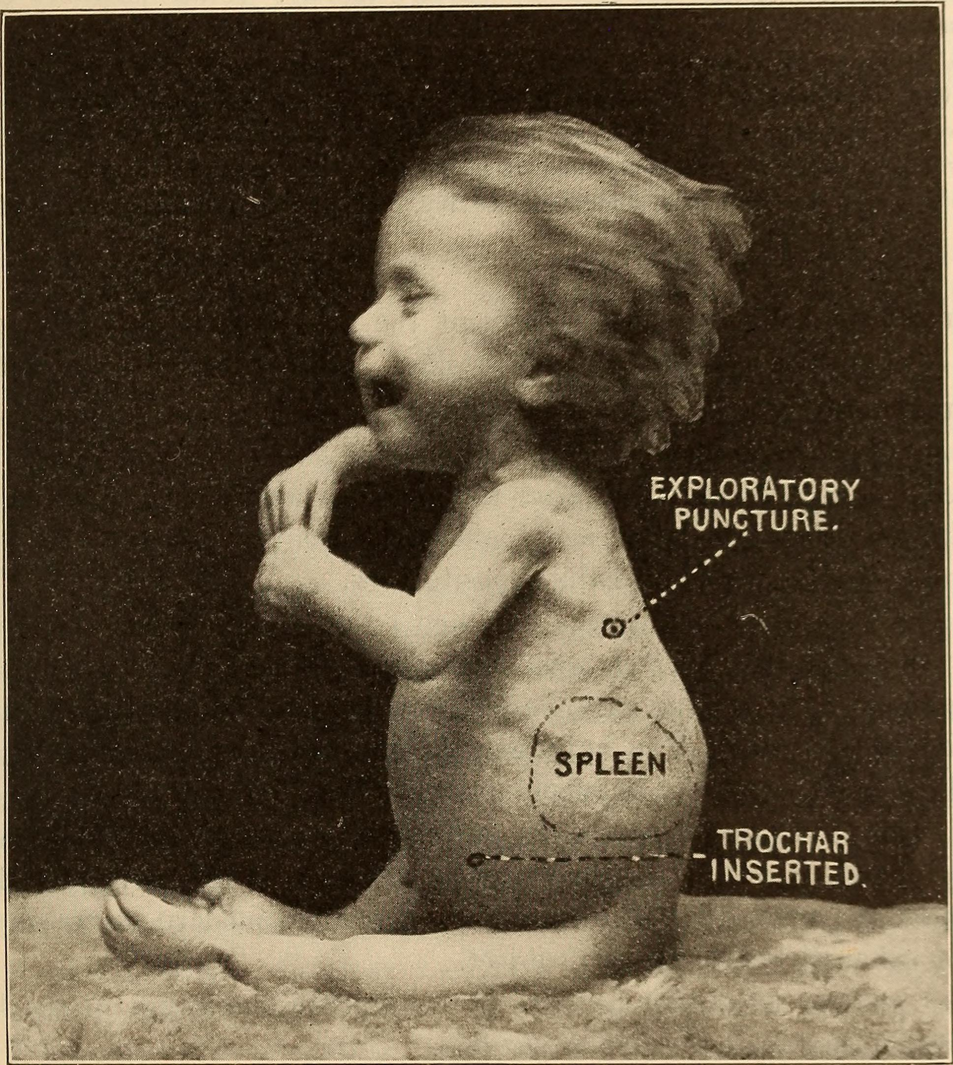 Disorders of later infancy and childhood
