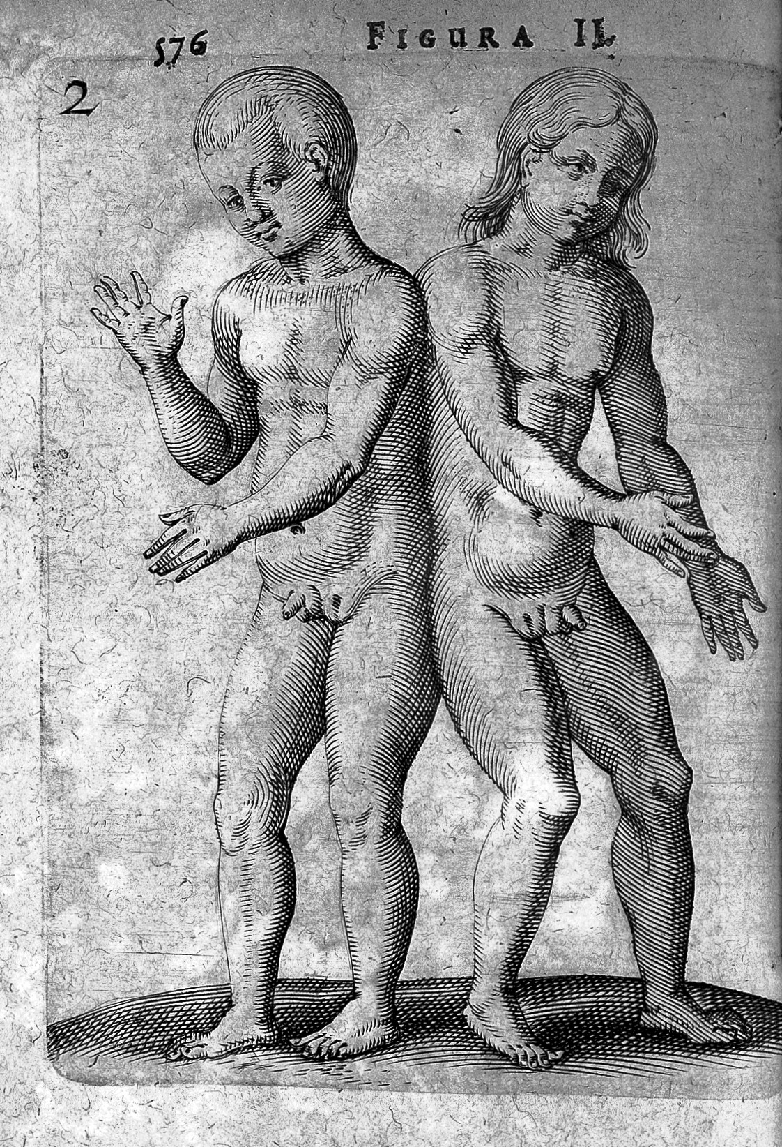 Hermaphrodite File:Hermaphrodite twins from De Hermaphroditorum, 1614 Wellcome  L0007589.jpg