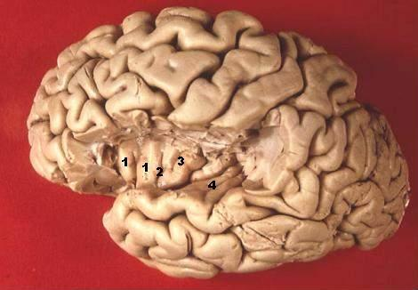 transverse temporal gyrus - wikipedia, Human Body