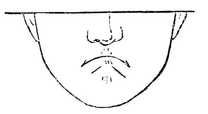 PSM V36 D702 Pinched facial expression.jpg