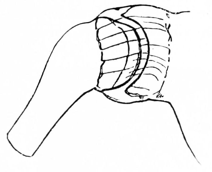 PSM V42 D776 Diagram of shoulder joint.jpg