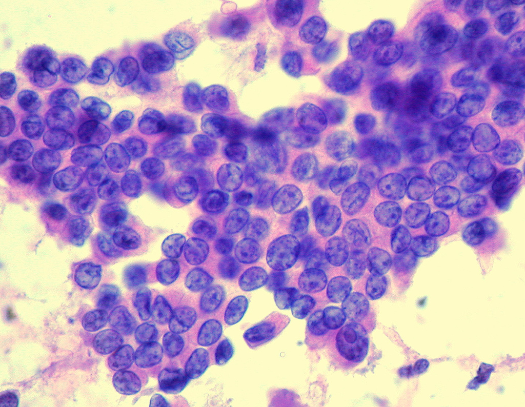 Papillary Thyroid Cancer Wikipedia