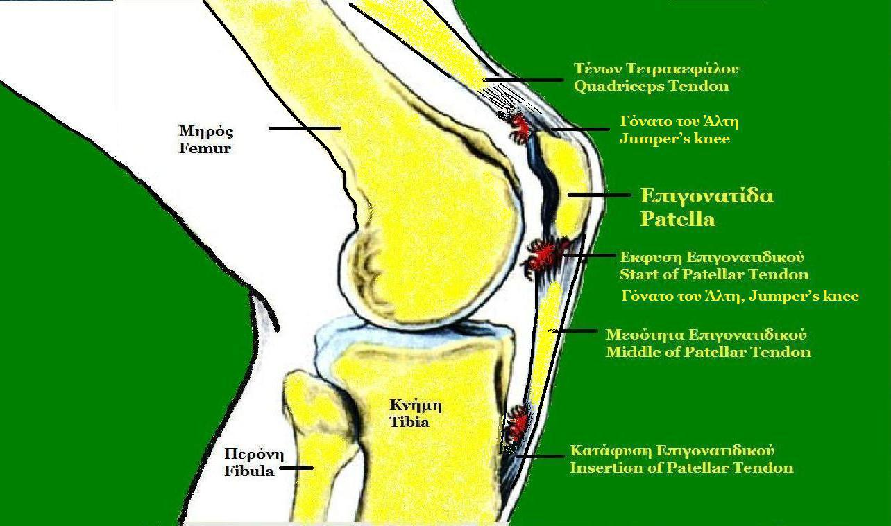 enthesis spurring Juvenile enthesitis-related arthritis includes swelling and pain where tendons and ligaments attach to bone it affects more boys than girls.