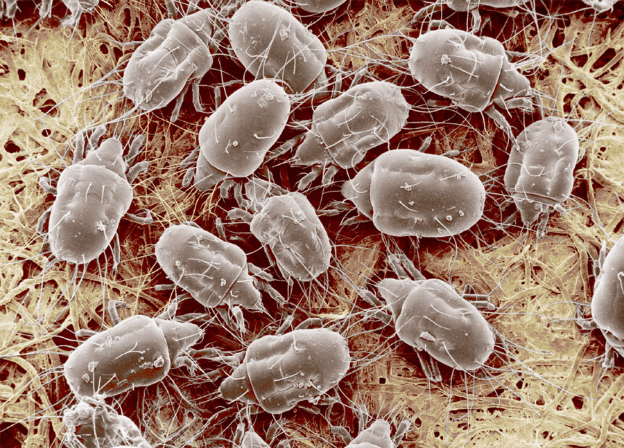 Dust Mites Everything You Might Not Want To Know!!!