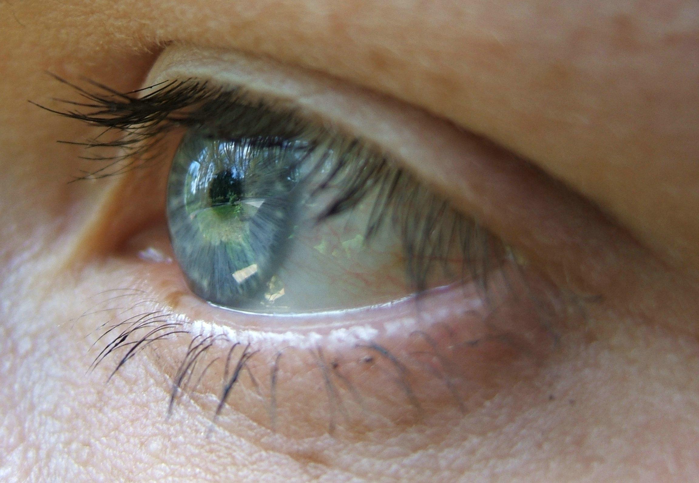 Cat Eye Membrane Visible Sometime