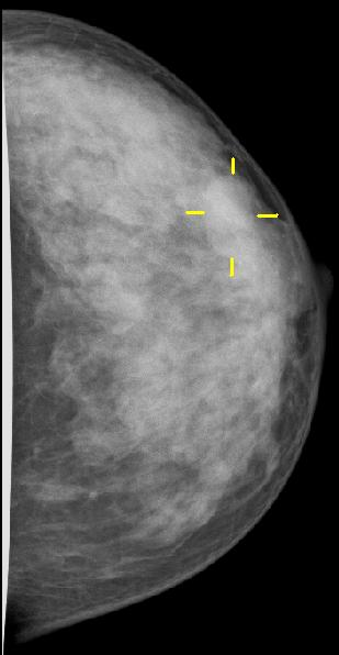 Yellow Crosshairs:Breast Cancer on Mammogram Courtesy of Wikimedia Commons