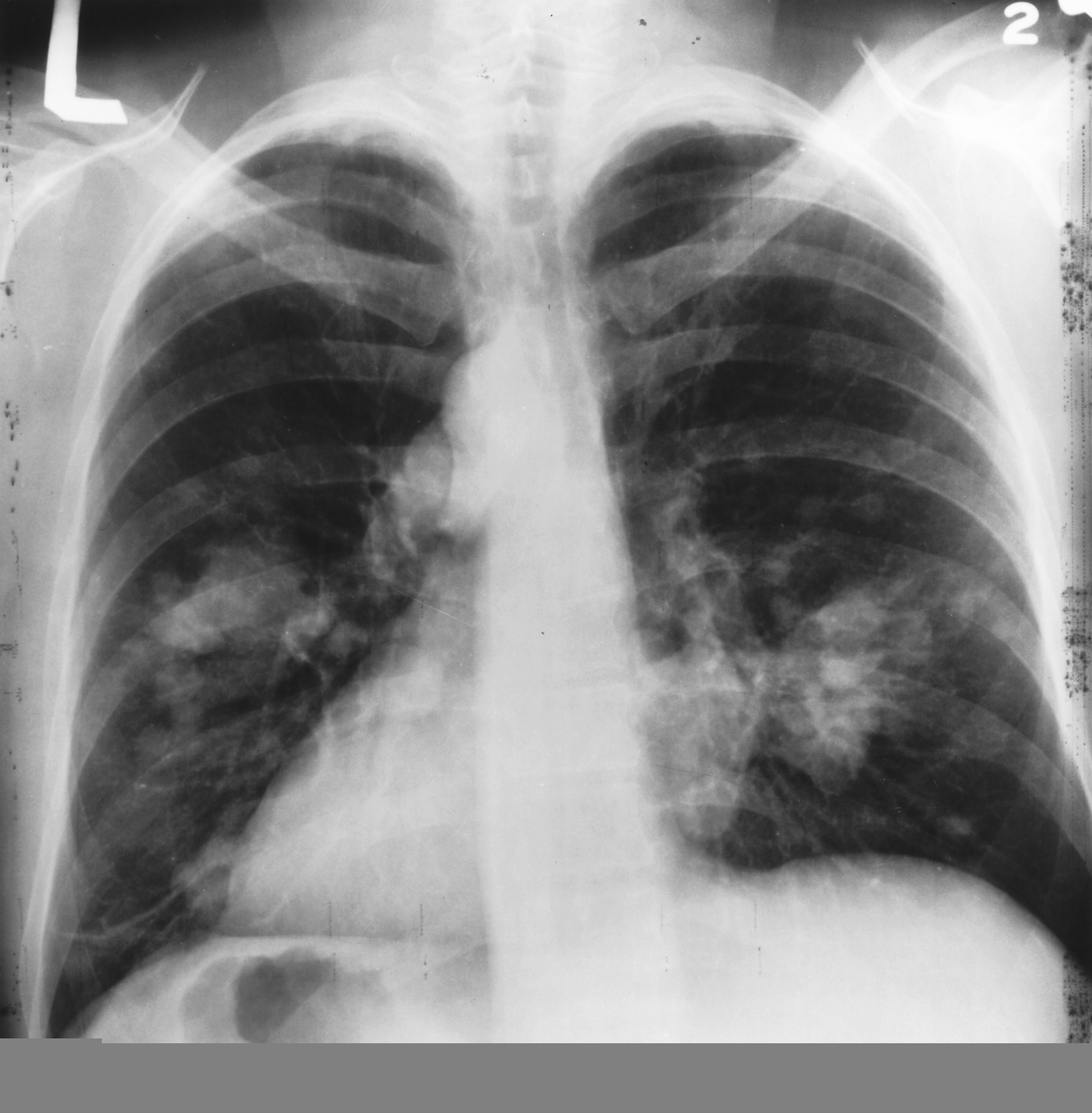 Chest X-Ray Lung Cancer