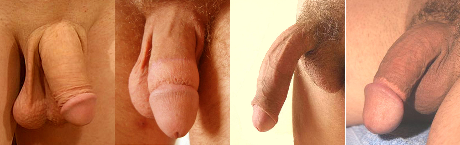 Male penis splitting