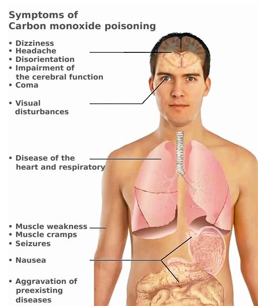 CO_toxicity_symptoms_%28en%29