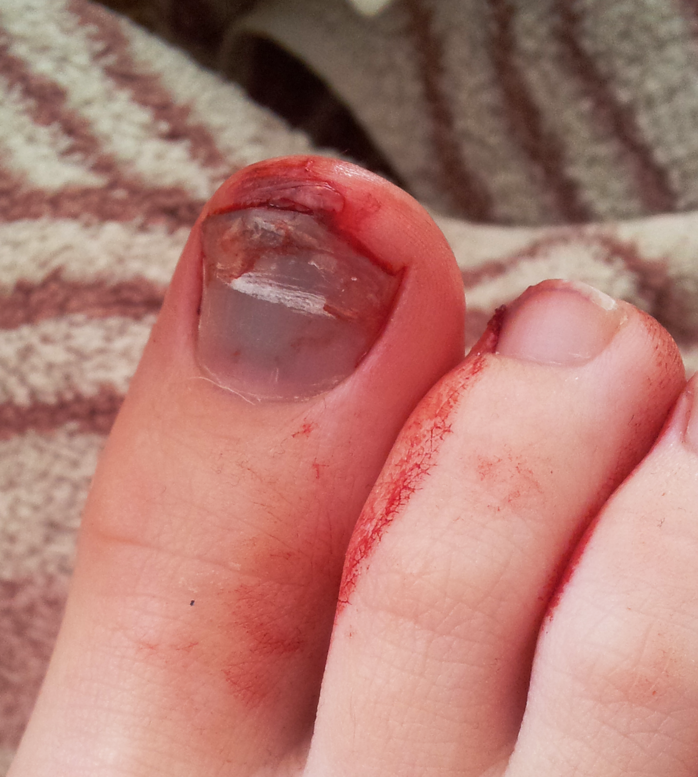 Red Lump On Dog Toe