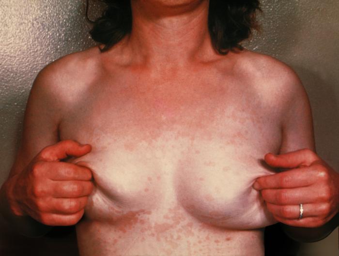 La persona dopo eliminazione di posti di pigmentary