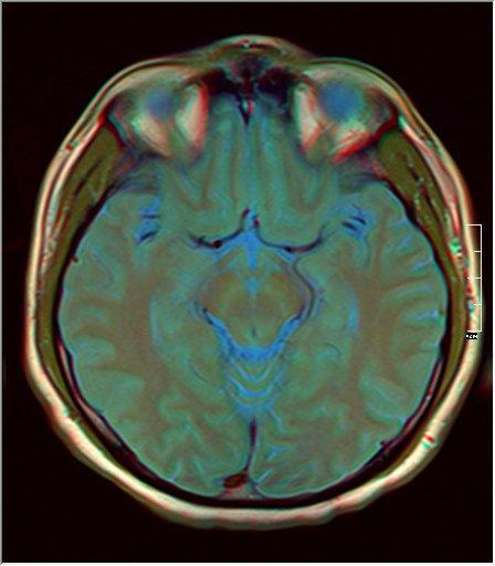 Brain MRI 0077 12.jpg