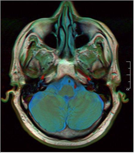 Brain MRI 0259 16.jpg