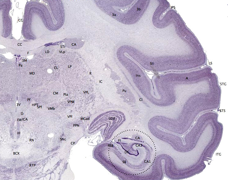 Cerebral Cortex Wikipedia