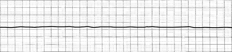 File:EKG Asystole.jpg