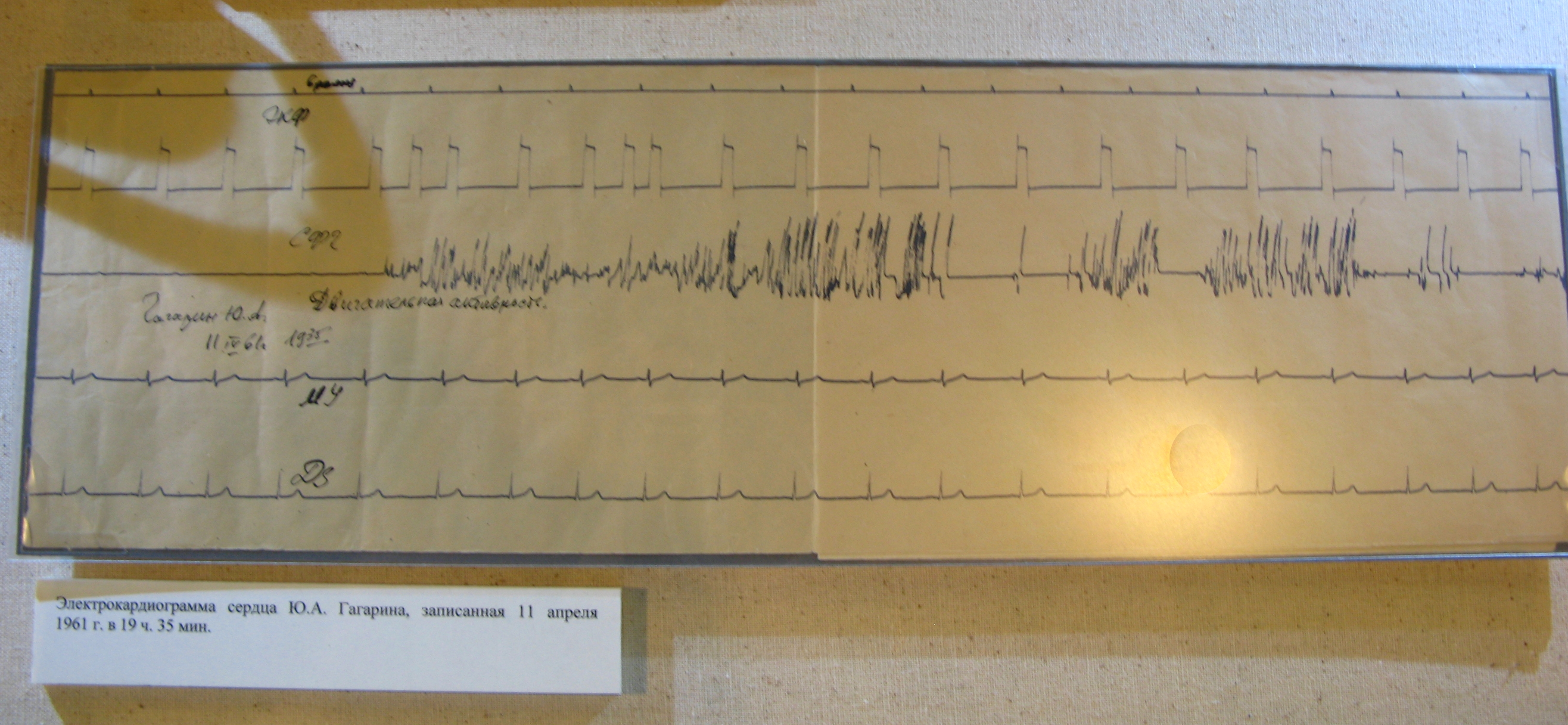 Jurij Gagarin cardiogram.JPG