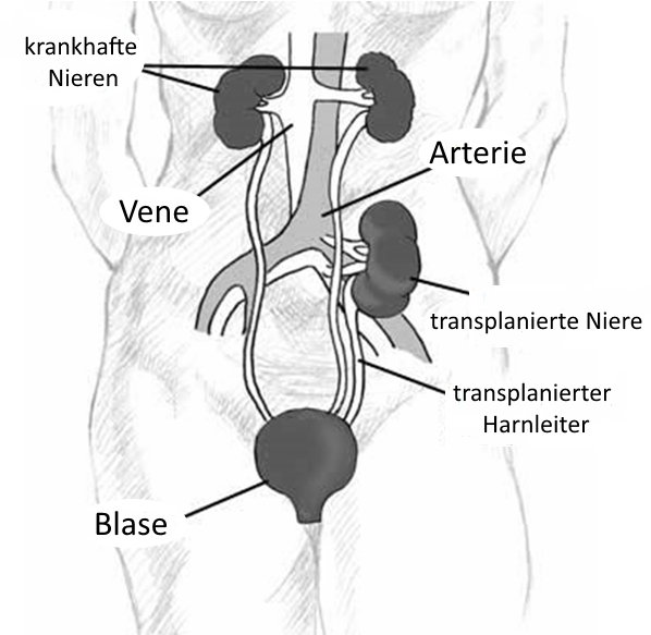 Darstellung einer heterotopen Nierentransplantation