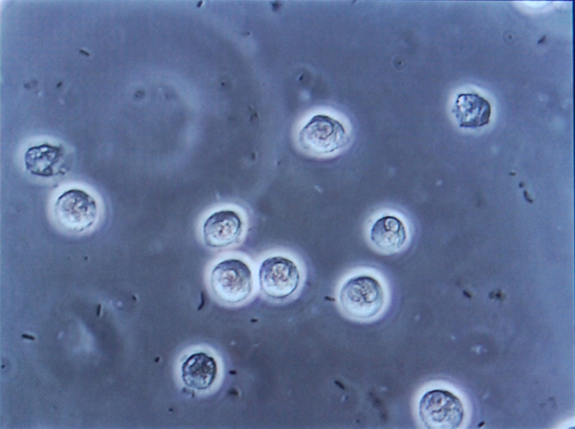 尿 中 白血球