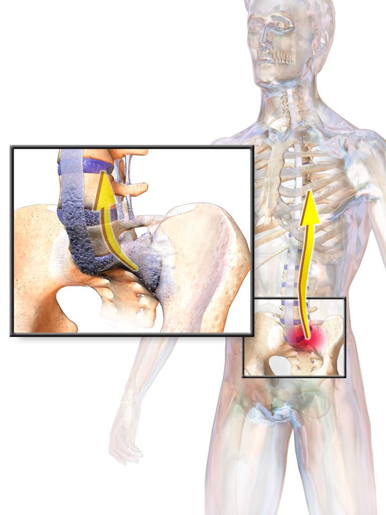 a csípőízületek fájdalma ülőkor)