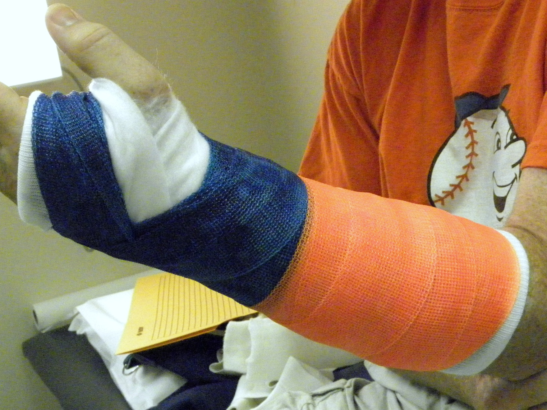 File:Day 220 - My Husband's Cast.jpg - Wikimedia Commons