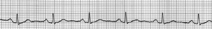 normal heartbeat