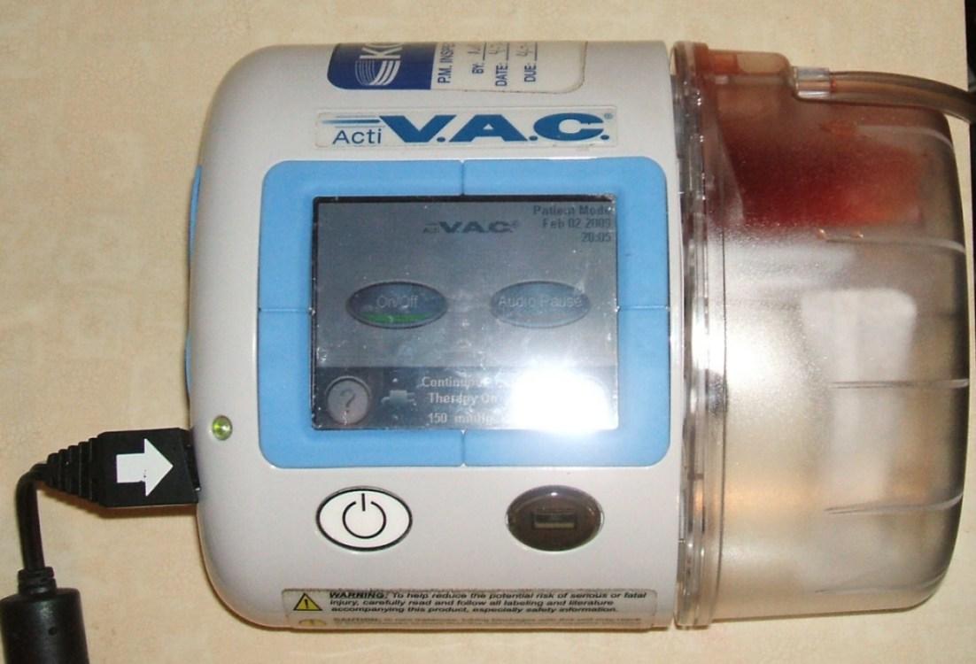 wound vac machine cost