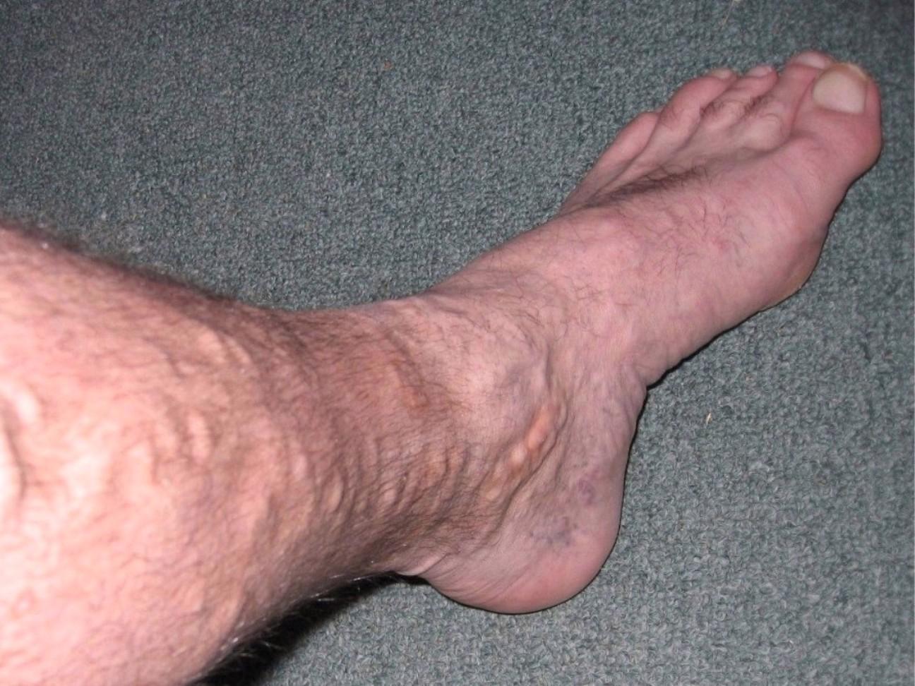 Varicose veins - Wikipedia
