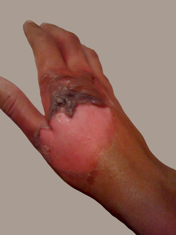 Second-degree burn caused by contact with boiling water