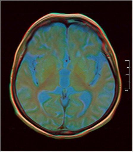 Brain MRI 0198 10.jpg